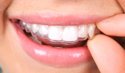 Clear Invisalign Aligners, Airdrie Dentist